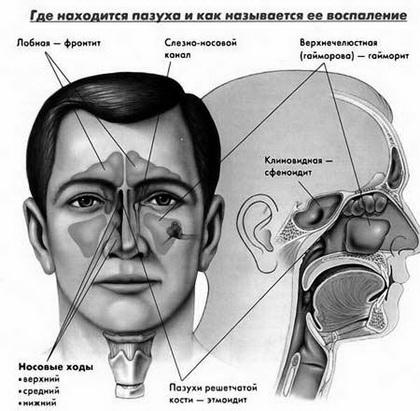 Гайморит – это заболевание верхних полостей носа.