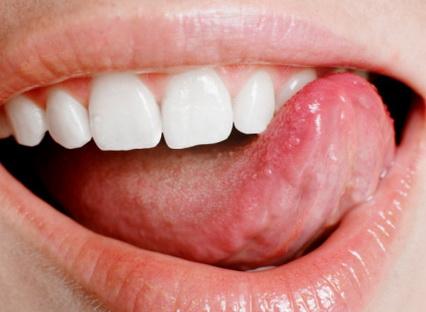 Язык – это один из важнейших органов человеческого тела.