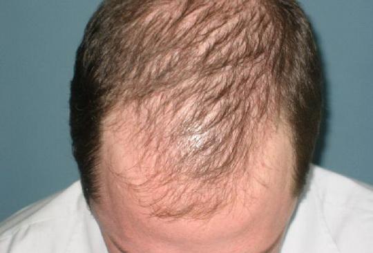 Алопеция – это полное исчезновение или поредение волос.