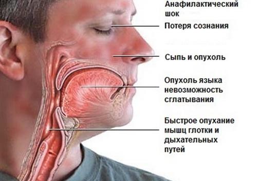 Анафилактический шок – это состояние, вызванное повторным введением аллергена.