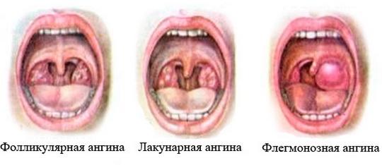 Ангина – это инфекционный процесс, с воспалением миндалин.